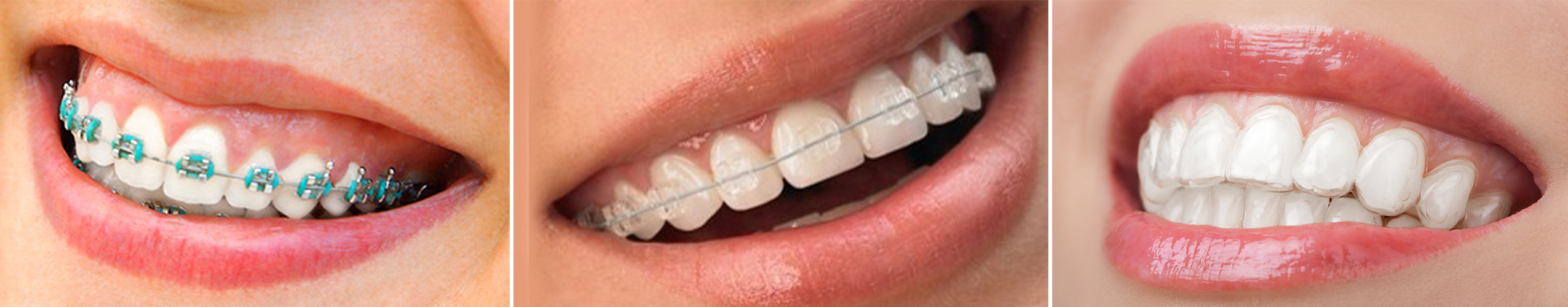 Picture of three different types of braces