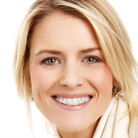 Picture of a young adult woman with braces