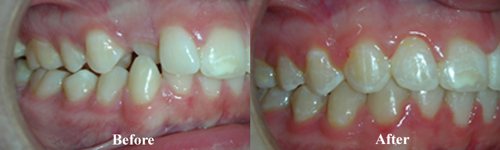 Picture of another Crossbite Correction