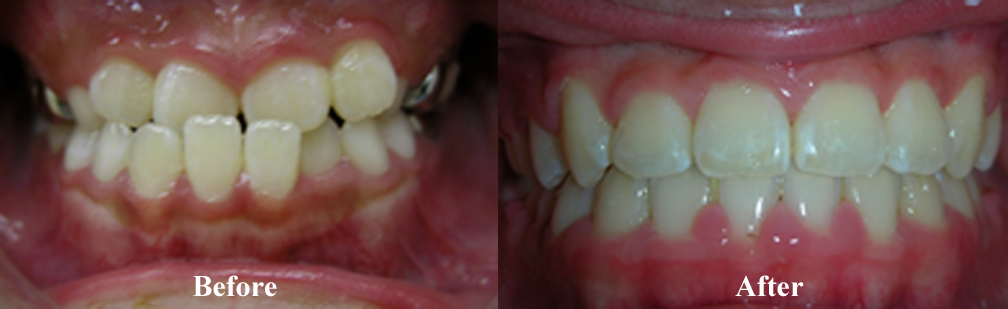 Picture of an Underbite Correction