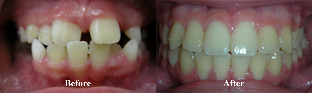 Picture of another Underbite Correction