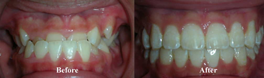 Picture of Underbite Correction